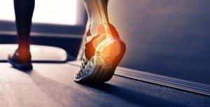 Orthèse plantaire et leurs effets sur les muscles